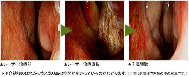 下甲介粘膜レーザー焼灼術(レーザー治療)
