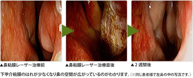 下甲介粘膜レーザー焼灼術(鼻粘膜レーザー治療)
